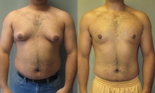 Gynekomastie Před po léčbě