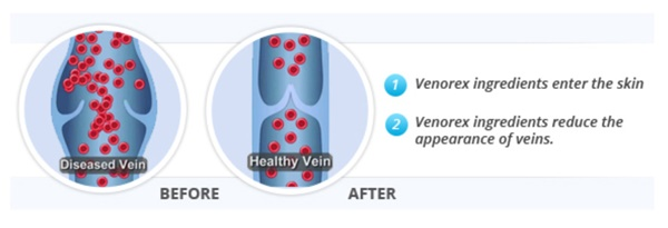 how-venorex-work
