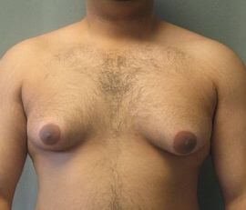 Where to Find Gynectrol - Male Breast (Gynecomastia) Reduction Pills in Your Country
